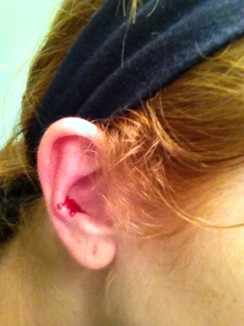 photo of Kym with pool of blood in her ear from kitten bath wars