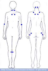 Diagram of the human body front and back with dots to show where fibromyalgia pain frequently strikes