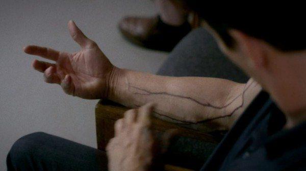 Bill's hep v veins are spreading.